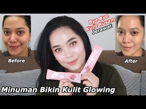 Review Testimoni Byoote Collagen