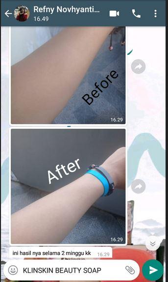 Review Testimoni Sabun Klinskin Untuk Badan dan Bagian Tubuh tangan glowing cerah putih